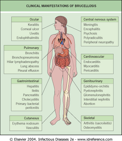 Brucellosis and Glutathione